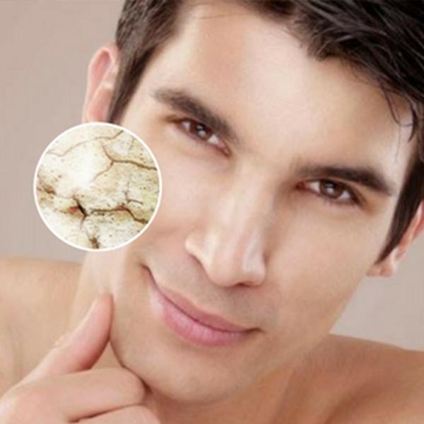 Thời tiết và môi trường làm việc khiến làn da bị khô ráp